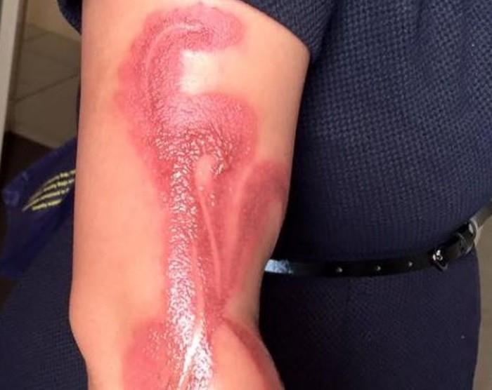 brazo-quemado-mujer-embarazada-iphone-7-Australia